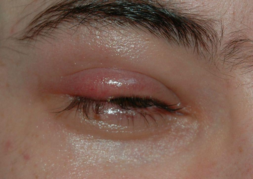 目の痛み・目の奥の痛みの原因